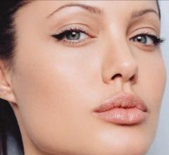 Angelina Jolie: muore la zia per tumore al seno